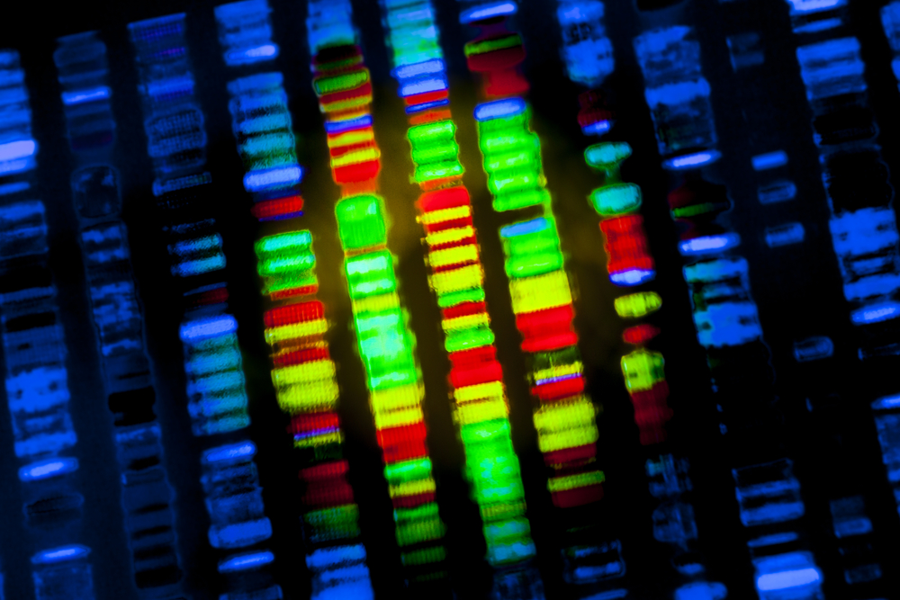 Four Genes Used to Predict Rectal Cancer Patient Response to CRT
