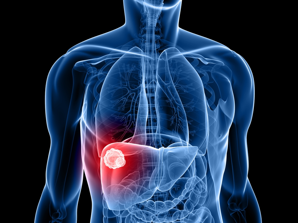 Colorectal Cancer Metastasis Associated With Liver Metabolic Processes