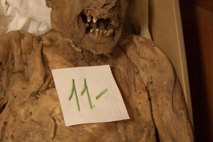 Colon Cancer Gene Found in 18th Century Hungarian Mummified Tissues