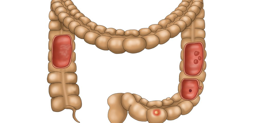 Diagnostic Agent Detects Colorectal Cancer Response to Therapy in 1 Day in Mice