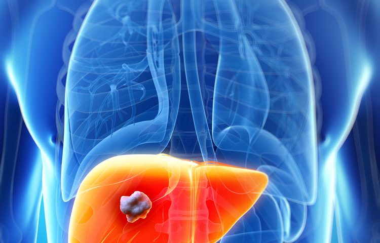 New Biomarker Could Improve Treatments for Colorectal Cancer with Liver Metastasis
